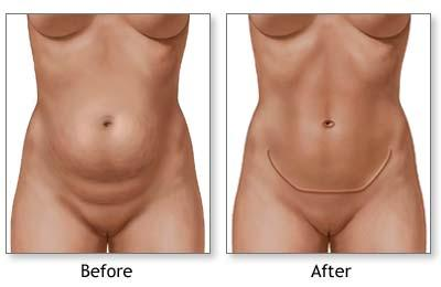 before after tummy tuck illustrations
