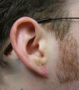 Otoplasty And Ear Reconstruction Procedures Are Used To Re The Normal Earance External Need For Such Can Be Caused By A