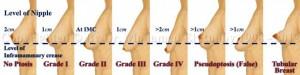 breast ptosis grade illustration